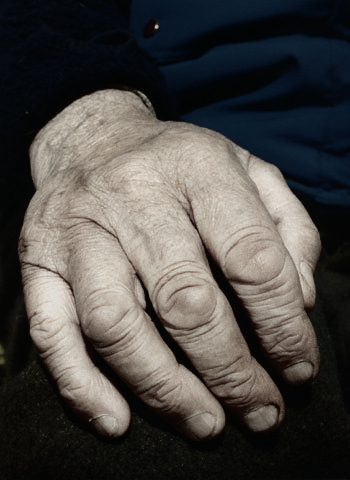 hand_wrinkled_male
